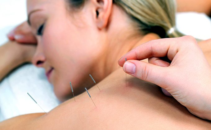 lady having acupuncture treatment